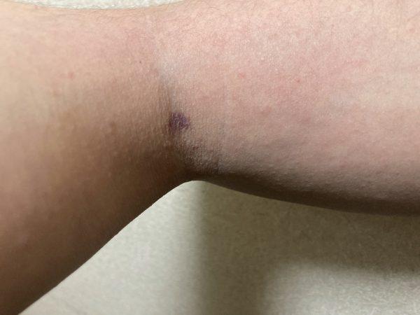 皮膚が赤くアレルギー症状